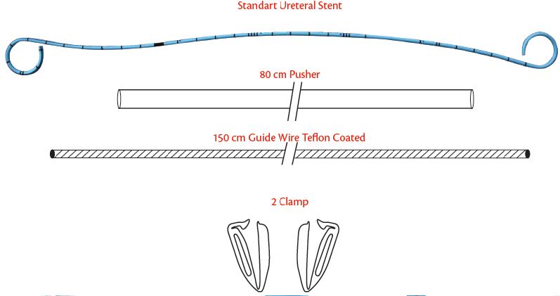 Ureteral Double J Stent Set