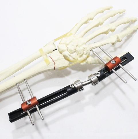 Hand Wrist Fxator